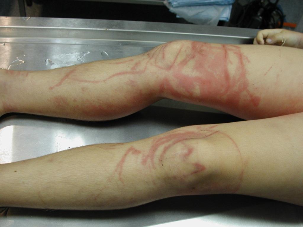 Фото больного с диагнозом: Лихорадка Денге